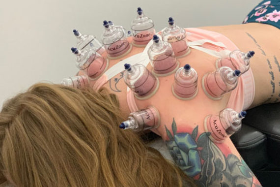 cupping-recovery